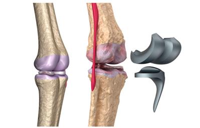 Causas artroplastia de rodilla, rehabilitación y fisioterapia