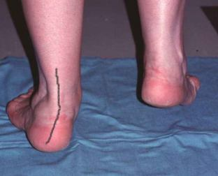 test-tibial-posterior